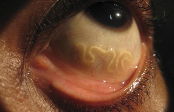 паразиты в теле человека симптомы как лечить