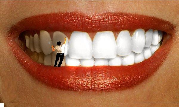 отбеливание зубов способы